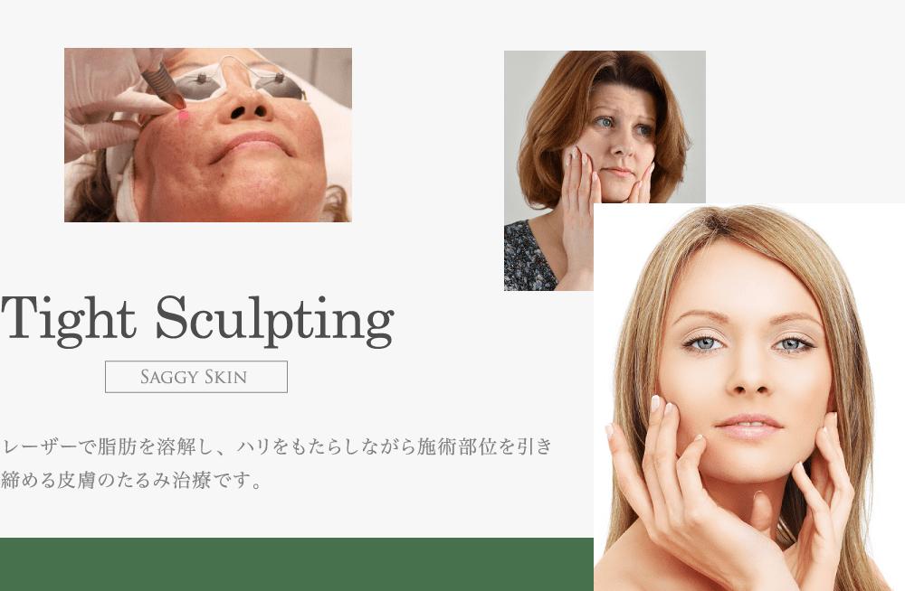 皮膚のたるみ治療